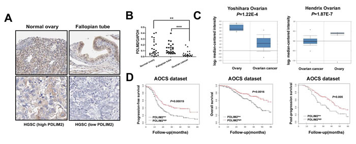 Repression of PDLIM2 is associated with ovarian cancer prognosis.