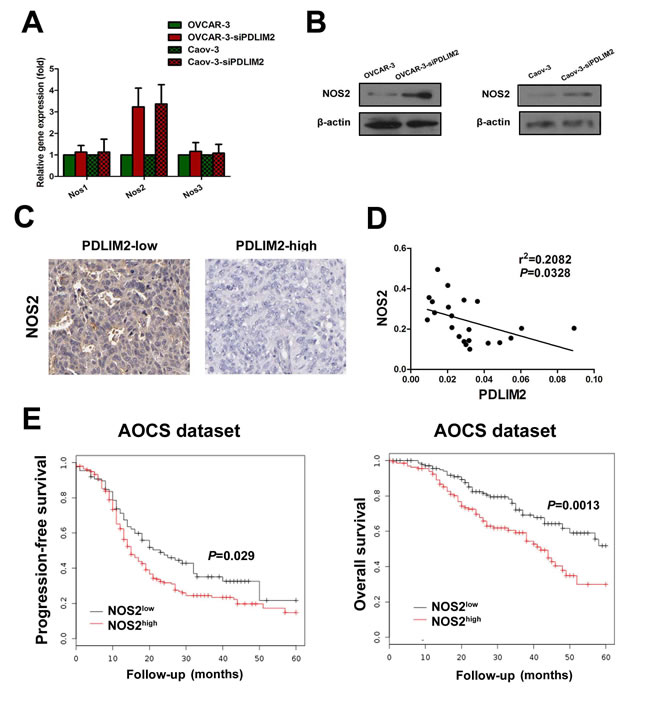 Enhanced expression of NOS2 in PDLIM2-repressed ovarian cancer cells.