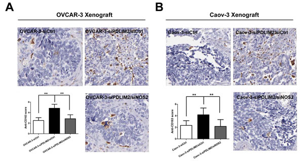 NOS2 inhibition reduces M2 type tumor-associated macrophage infiltration in PDLIM2-low ovarian cancer.