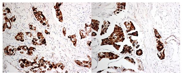 Representative immunohistochemical staining of DCLK1 (x400).
