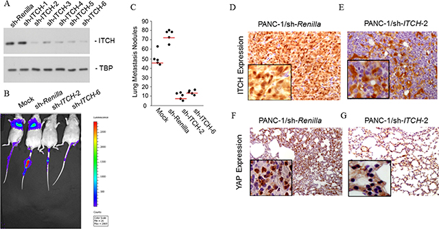 ITCH drive metastasis in vivo.