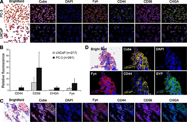 FYN kinase co-expressed with neuroendocrine biomarkers in primary PCa with neuroendocrine phenotype and in PCa liver metastasis.
