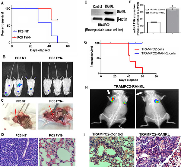 FYN promotes invasion and metastasis of NEPC cells in vivo.