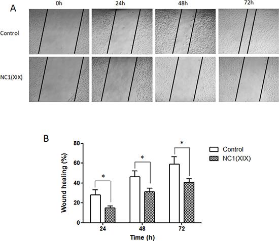 NC1(XIX) inhibits migration of SK-MEL-28 melanoma cells.