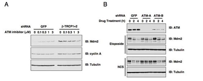 ATM is involved in DNA damage-induced Mdm2 destruction.