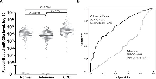 Levels of (A) faecal-based miR-20a, and (B) the respective area under receiver operating characteristic (AUROC) curves for CRC and adenoma.