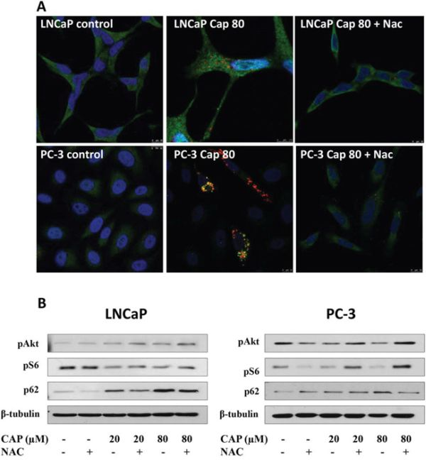 The Reactive oxygen species (ROS) scavenger NAC abrogates capsaicin-induced autophagolysosomes accumulation and Akt inhibition in prostate cancer cells.