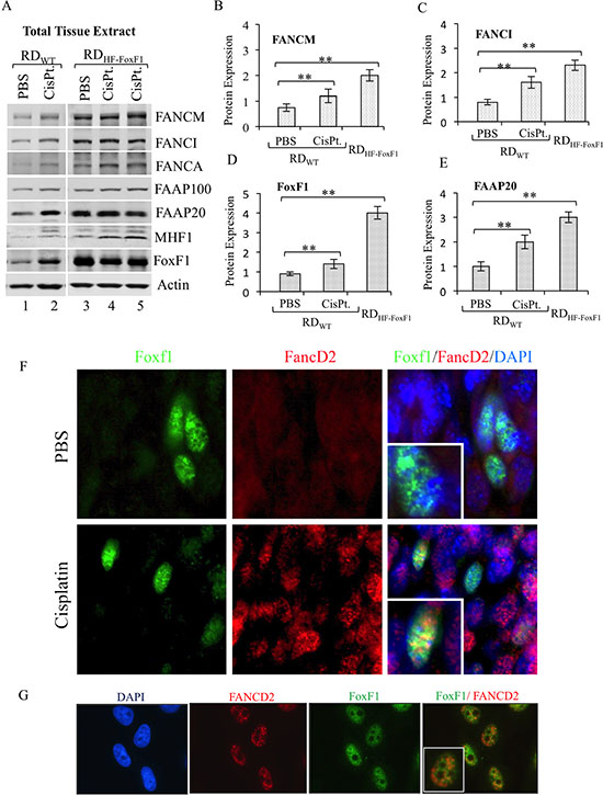 Overexpression of FoxF1 increases the levels of FA proteins in tumor tissue.