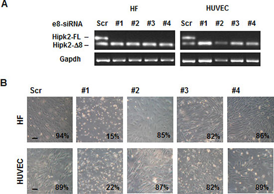 Non-tumor cell are sensitive to the apoptotic effect of e8-siRNA#1.