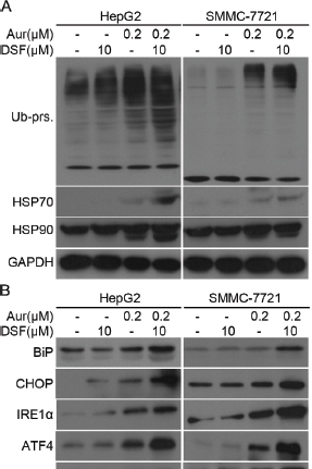 Aur and DSF combined treatment led to Ub-prs accumulation of ubiquitinated proteins and ER stress.