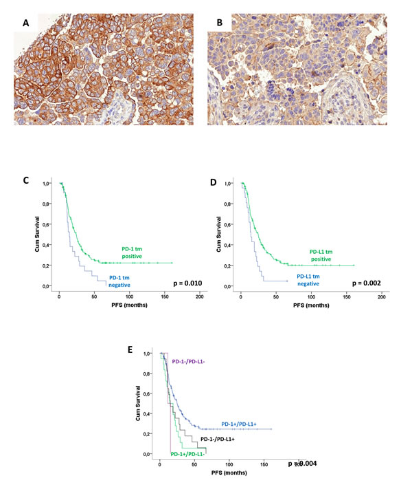 Expression pattern of PD-1 and PD-L1 in high-grade serous ovarian carcinoma cancer cells: Membrane-accentuated moderate PD-1 expression in cancer cells A.