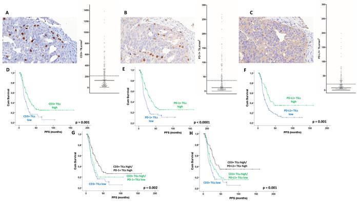 TILs in ovarian high-grade serous carcinoma: Intraepithelial CD3+ TILs