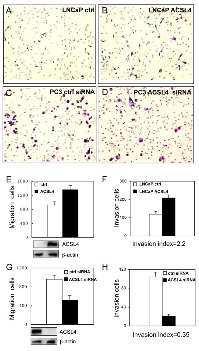 Effect of ACSL4 expression on invasion capability of PCa cells.