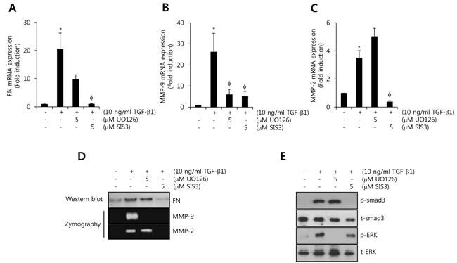 TGF-β1-induced FN, MMP-2, and MMP-9 expression is decreased by smad3-dependent pathway.