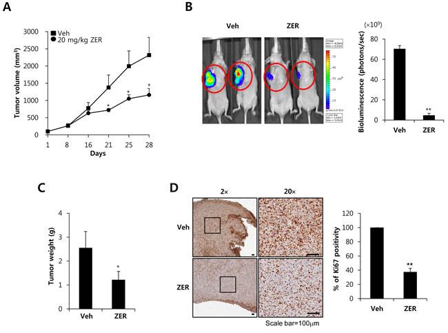 ZER suppresses the growth of MDA-MB231 xenograft tumors.