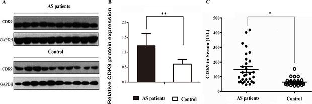 Validation of CDK9 expression in serum samples.