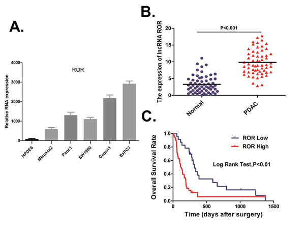 ROR upregulation is associated with poor prognosis in pancreatic cancer.