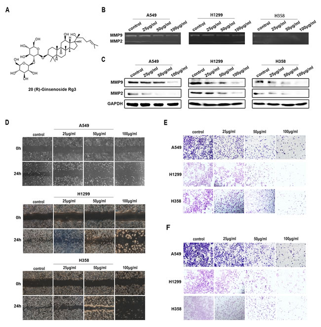 Rg3 inhibited migration and invasion of human NSCLC cells.