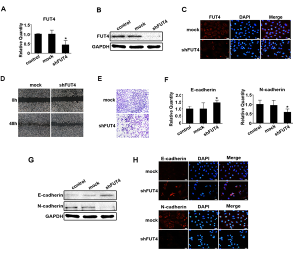 Down-regulating FUT4 expression reduced migration, invasion and EMT in A549 cells.