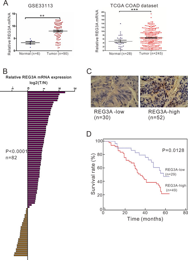 REG3A overexpression correlates with poor survival in CRC patients.