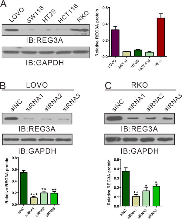 Suppressing of REG3A expression by siRNA transfection.