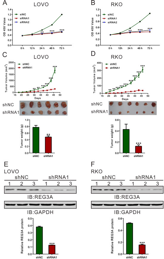 REG3A knockdown suppressed CRC cell proliferation