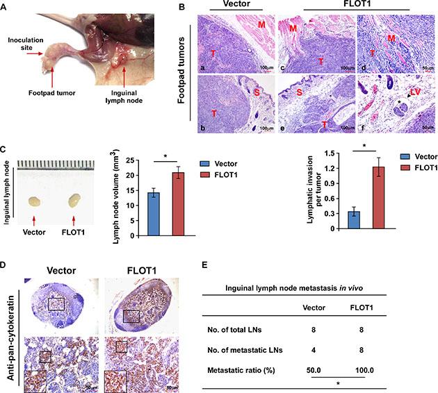 FLOT1 promotes NPC cell invasion and lymph node metastasis in vivo.