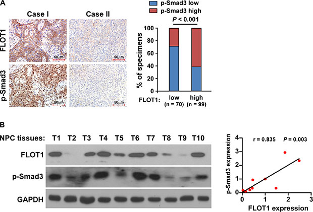 Clinical relevance of FLOT1-induced TGF-β signaling activation in NPC.
