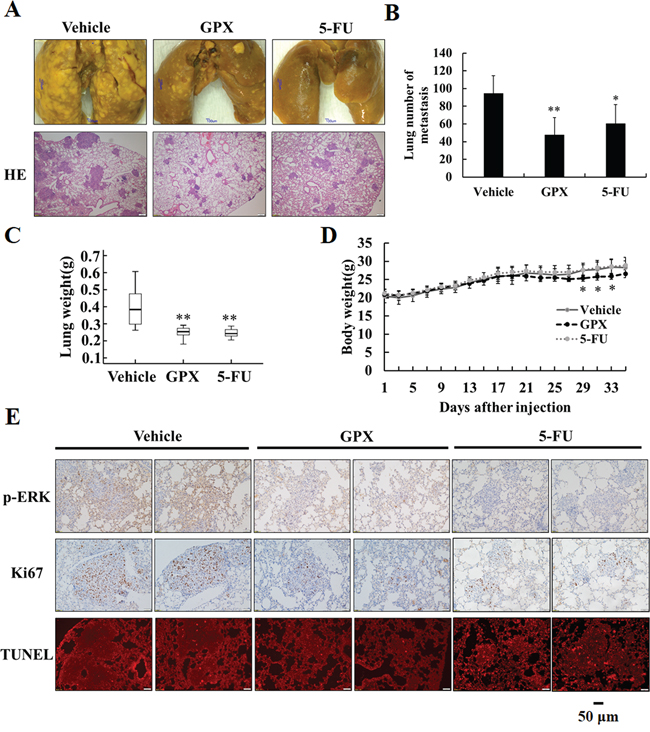 GPX prevents esophageal pulmonary metastasis in vivo.