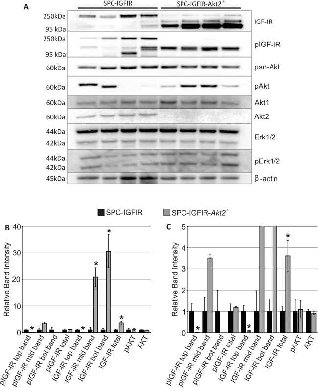 Tumors from SPC-IGFIR mice and SPC-IGFIR-Akt2−/− displayed difference in IGF-IR levels.