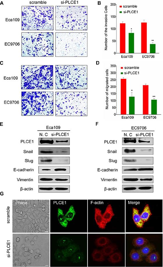 PLCE1 inhibition reduces ESCC migration and invasion and regulates ESCC cytoskeleton dynamics.