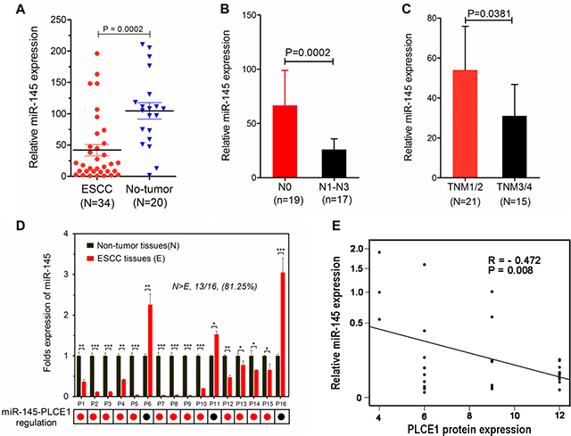 MiR-145 downregulation is inversely correlated with PLCE1 expression in human ESCC tissues.