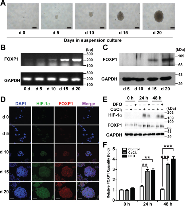 Expression of FOXP1 increases in suspension culture of A2780 ovarian cancer cells.