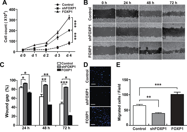 FOXP1 promotes proliferation and migration of A2780 ovarian cancer cells.