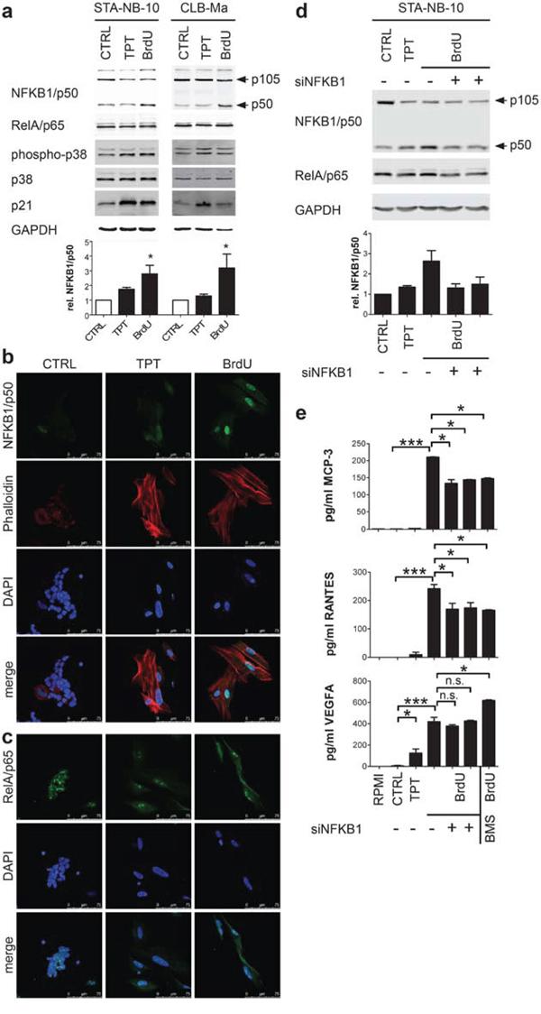Secretion of unfavorable factors by BrdU-induced senescent NB cells is dependent on NFKB1/p50.