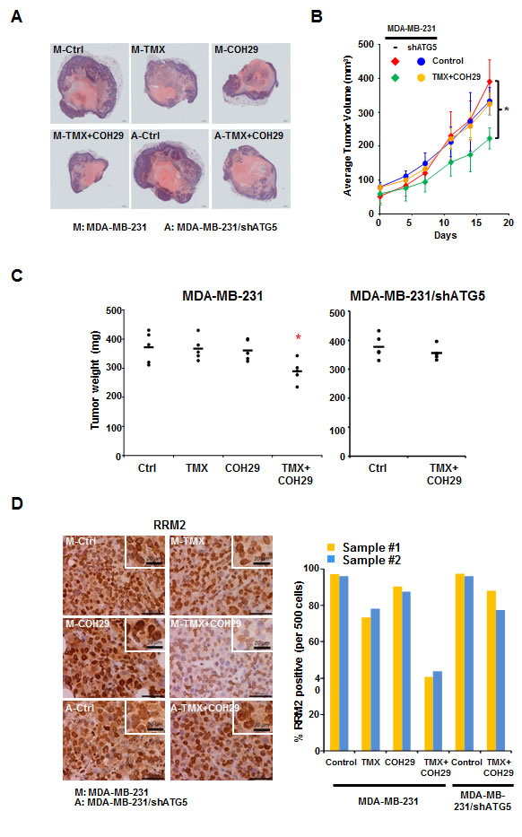 Combination of TMX and COH29 reduces tumor growth
