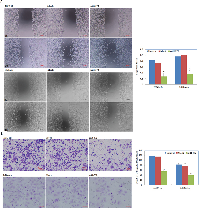 Effects of miR-372 transfection on invasive and metastatic ability of endometrial adenocarcinoma cell lines in vitro.