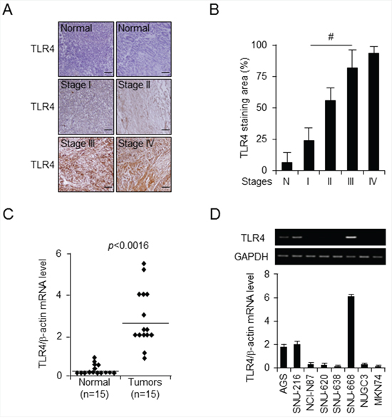 TLR4 expression pattern in gastric tumors