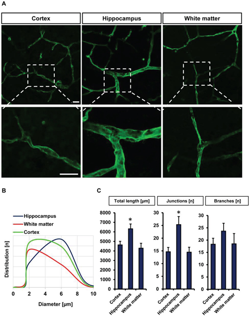 Visualization and quantification of the vasculature in different brain slice areas.