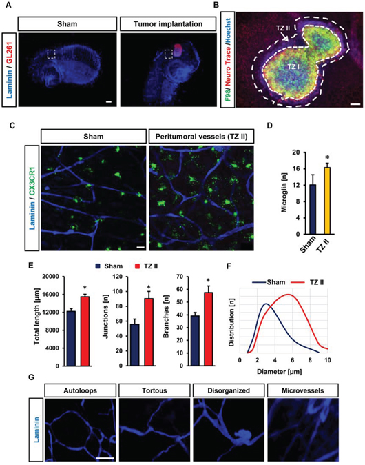 Visualization and quantification of tumor angiogenesis and microglia.