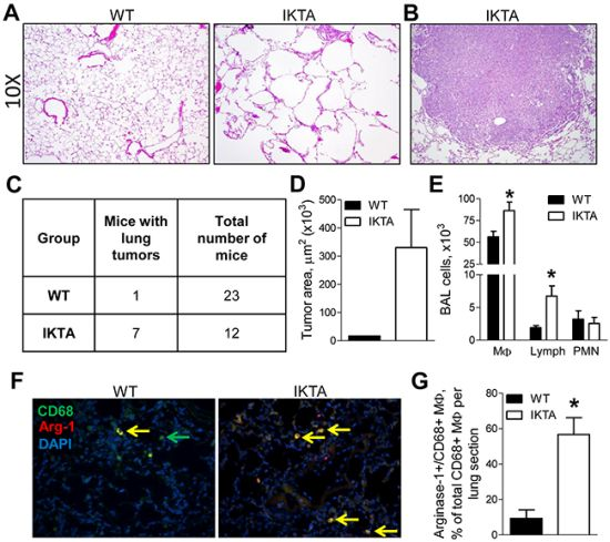 NF-κB-induced chronic airway inflammation induces spontaneous development of lung tumors.