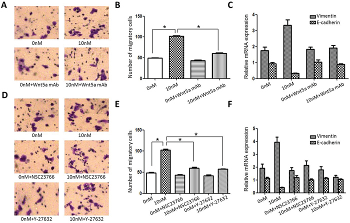 Effect of blocking Wnt/PCP signaling on Scc25 cell invasiveness