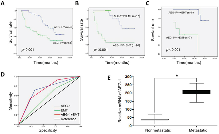 Effect of AEG-1 and EMT status on Kaplan-Meier survival curves, and their corresponding ROC analysis