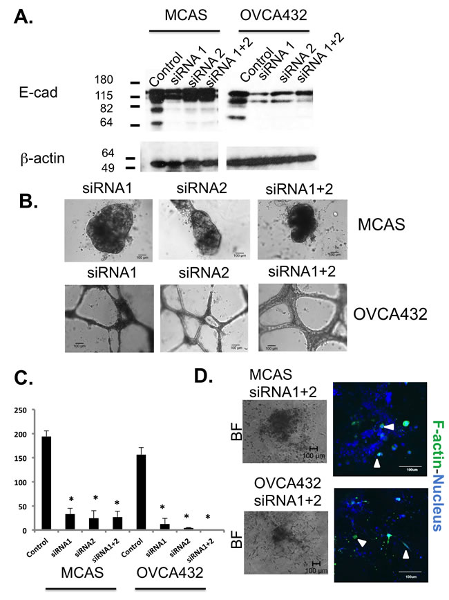 Knockdown of E-cadherin expression in MCAS and OVCA432 cells significantly changed spheroid formation and tumor cell migration.
