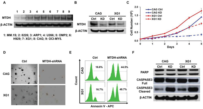 Decreased MTDH expression induces MM cell growth inhibition in vitro.