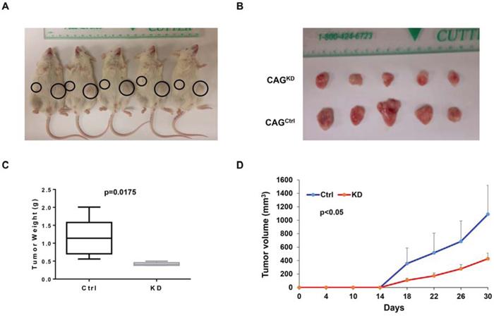 Downregulation of MTDH inhibits myeloma xenografts in NSG mice.
