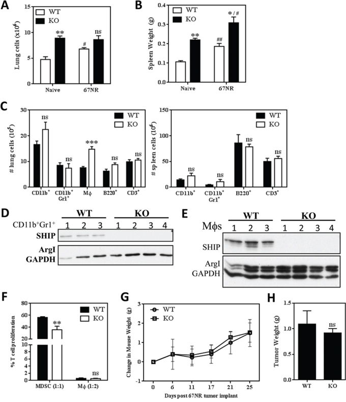 SHIP deficiency does not accelerate the growth of non-metastatic 67NR mammary tumors.