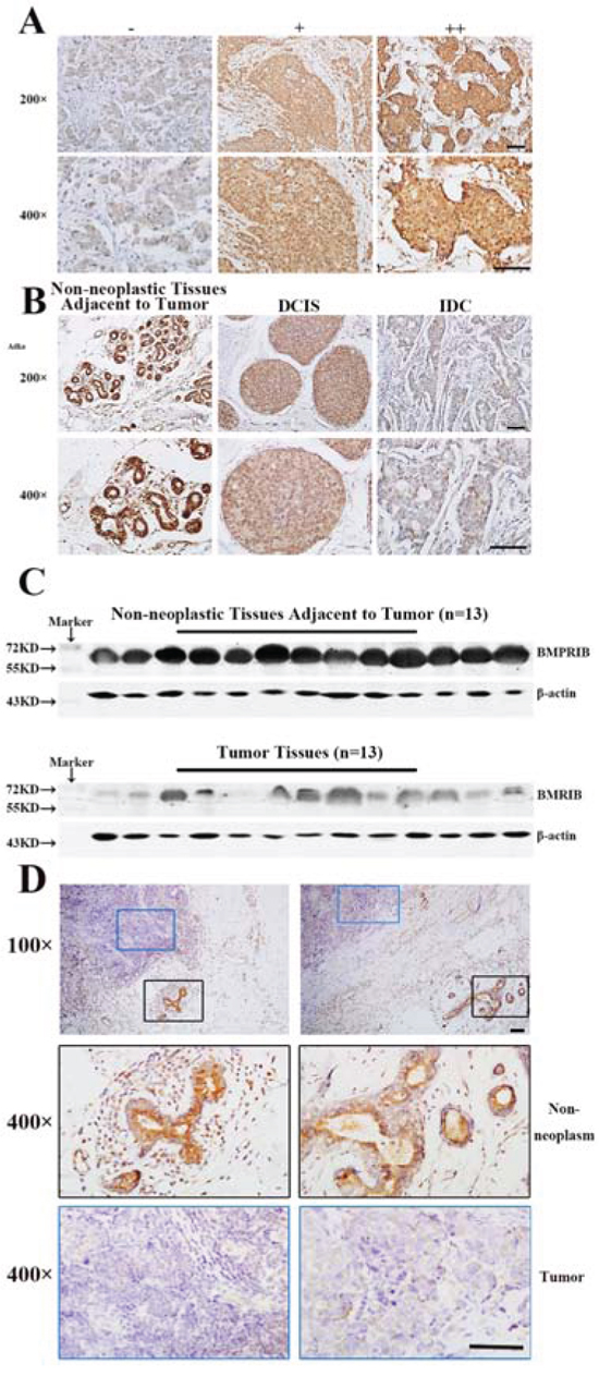 Low expression of BMPRIB promoted breast cancer progression.