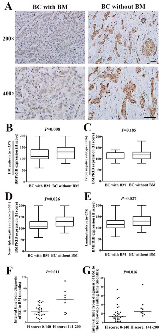 Low level of BMPRIB was a promoting factor for breast cancer (BC) patients to develop bone metastasis (BM).