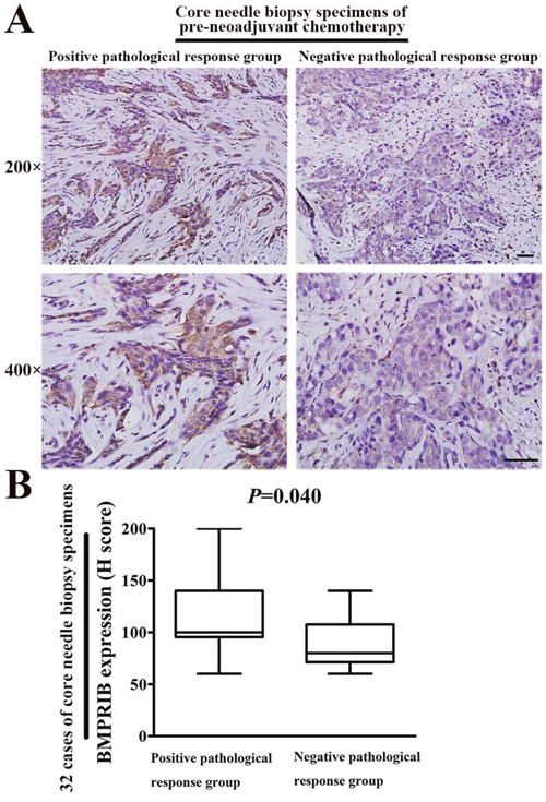 High BMPRIB expression was sensitive to TE therapy by using 32 specimens of core needle biopsy before neoadjuvant chemotherapy.